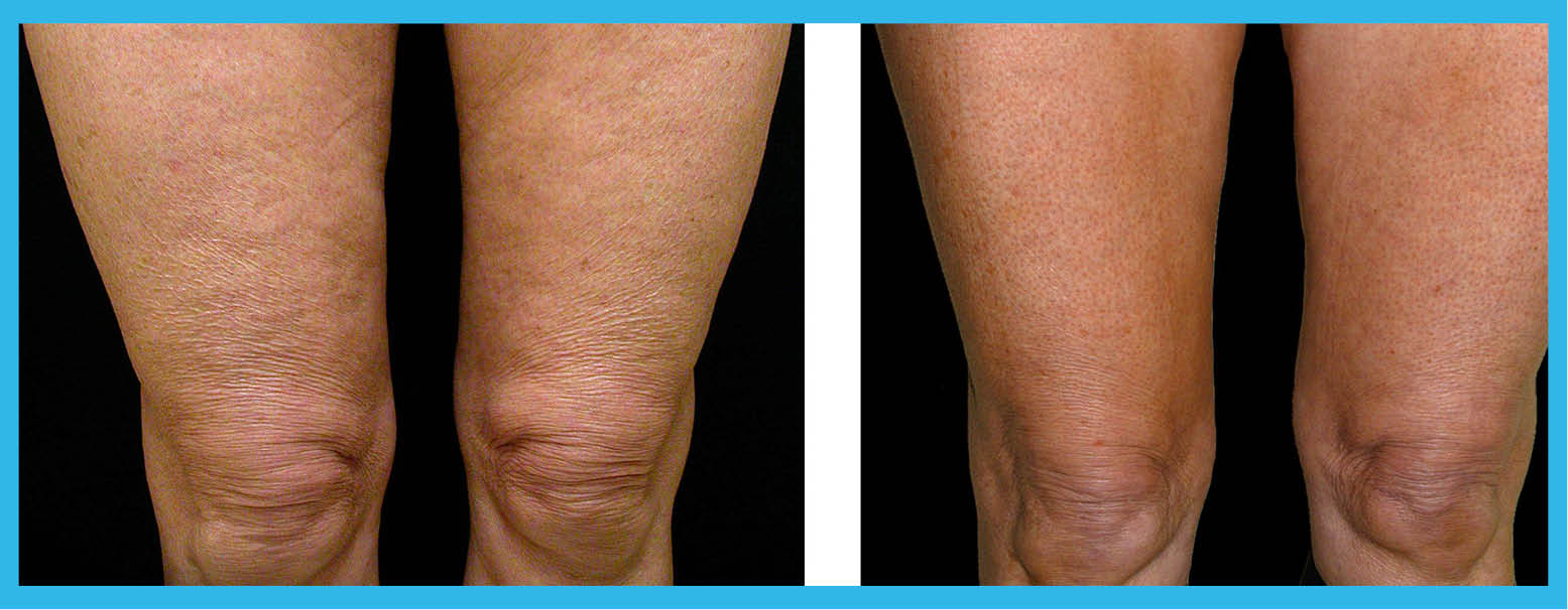 Saphira Clinic » Thermage for Cellulite & Skin Tightening