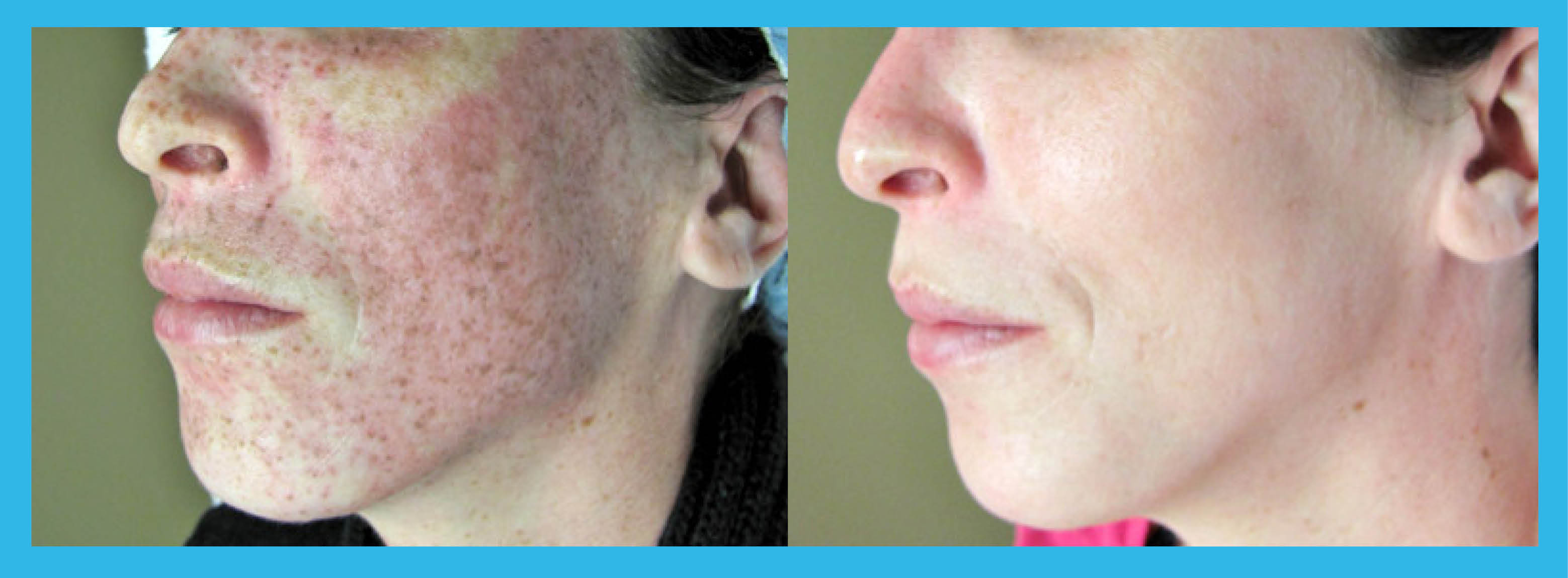 E-Light Photo Rejuvenation – Saphira Clinic