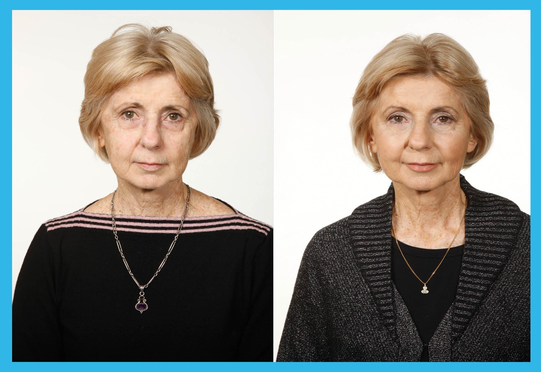 dermal_fillering_treatments_4_20130918_1025346818